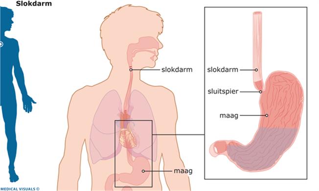 maag hernia operatie